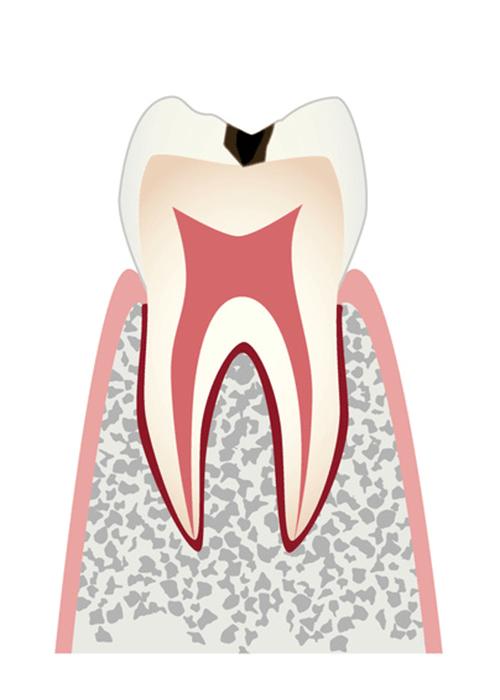 初期の虫歯